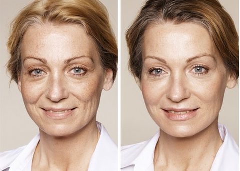 how long do dermal fillers last
