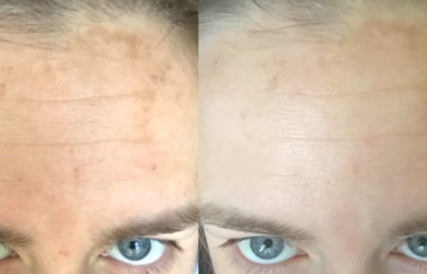 Drybrushing-before-and-after-face-min