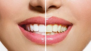 medium_What-to-Do-before-and-after-Your-Teeth-Whitening-Appointment-min